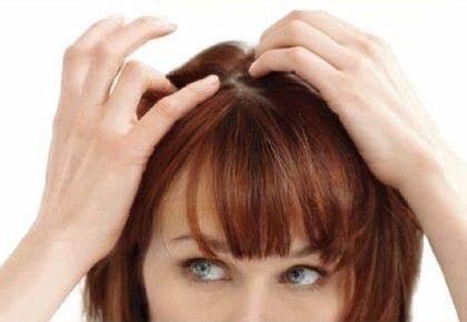 【円形脱毛症】円形脱毛症の種類と原因について解説!【堺市美原区】